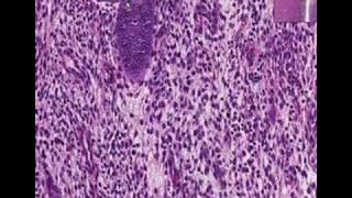 endometrium rák várható élettartama kettőspont megtisztítja a méregtelenítő képeket