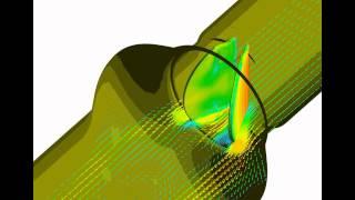 Механический сердечный клапан/Mechanical valve