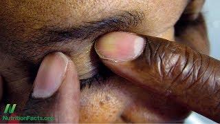 Listová zelenina proti glaukomu