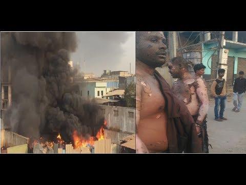 7 injured in Major Fire Accident at Jeedimetla Subhash Nagar  | 7H News | Hyderabad