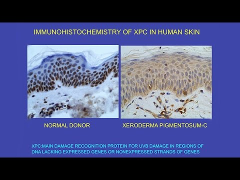 CARTA: Unique Features Of Human Skin – Ultraviolet Radiation: Effects On DNA And Carcinogenesis