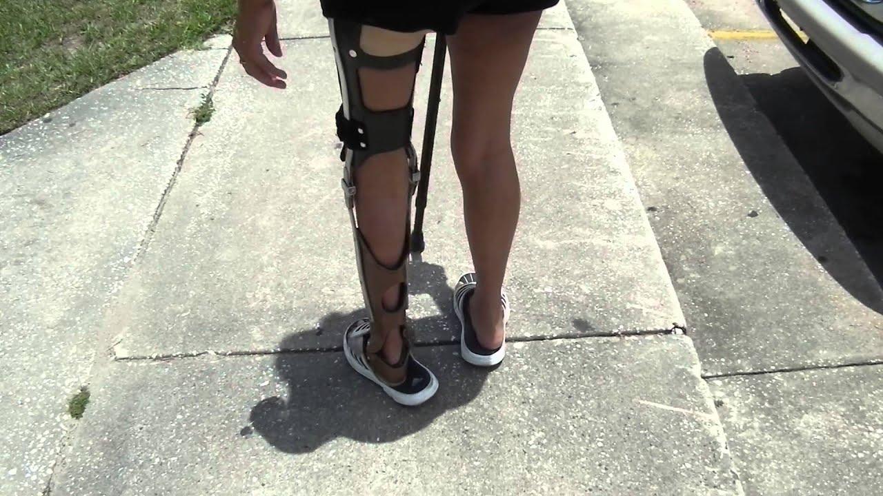 Walking In An Ankle Knee Foot Orthosis Please Help Youtube