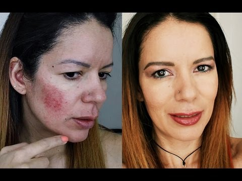rosacea acn foundation make up routine rutina de maquillaje y