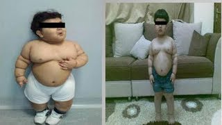 obese toddler before and after gastric bypass surgery actual photos