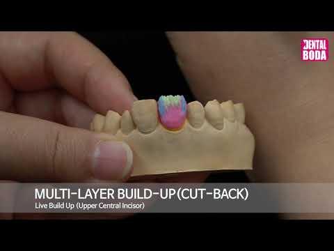 Multi layer build up (cut back)