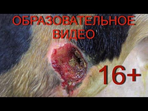 Хирургическое лечение пролежня.16+ Surgical Treatment Of Pressure Ulcers.