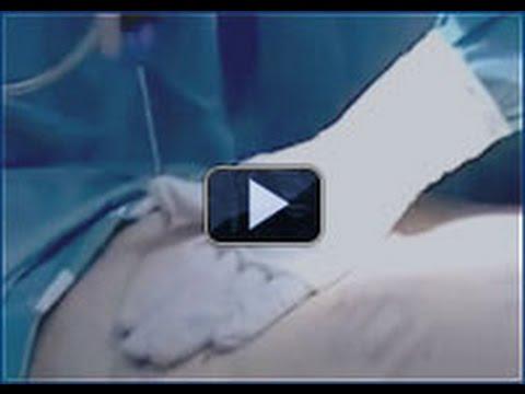 Fettabsaugungen - Fettabsaugung Bauch - Bodenseeklinik