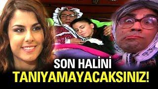Adanalı Dizisinin Pınar'ı Estetik Sonrası Bambaşka Biri Oldu!