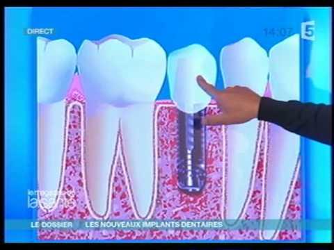 Prothesiste dentaire etude