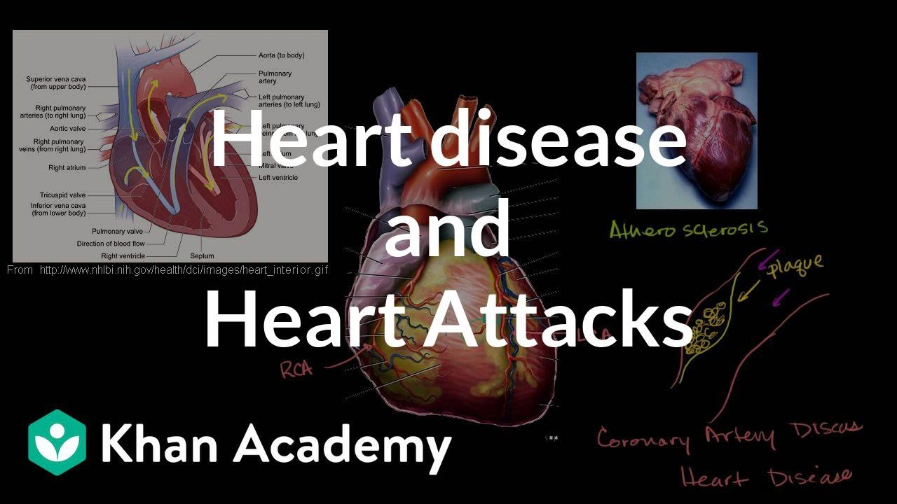 Heart disease and heart attacks | Miscellaneous | Heatlh & Medicine | Khan Academy