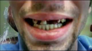 Drogen Doku: Die gefährlichste Droge der Welt Crystal Meth