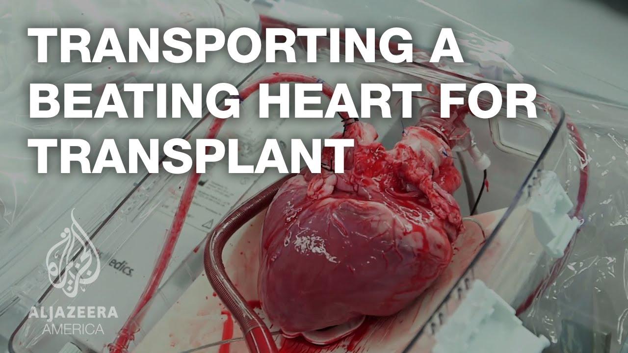 Transport bijącego serca do przeszczepu