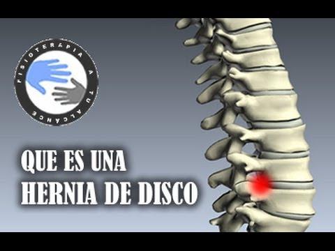 Duele en el esternón derecho da en la espalda