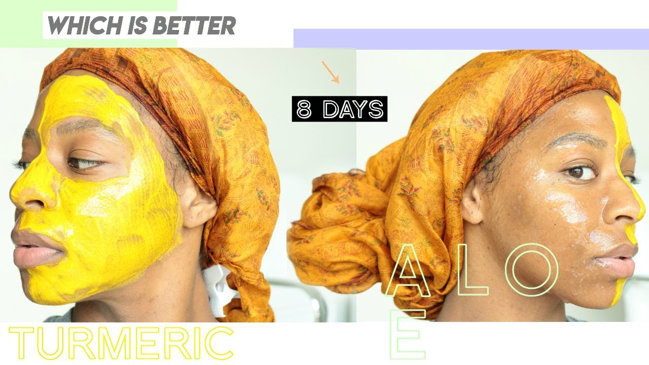 Aloe Vera Yogurt Tattoo Removal: So I Used Aloe Vera AND Turmeric On My Face For 8 DAYS