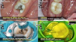 Gusi bengkak karena gigi tumbuh, operasi bedah kecil. Sakit gigi. Info kesehatan Jogja.