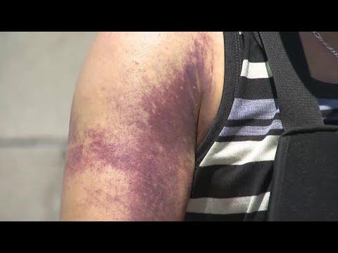 Man Beaten, Robbed Of $200,000 Life Savings Outside Bank