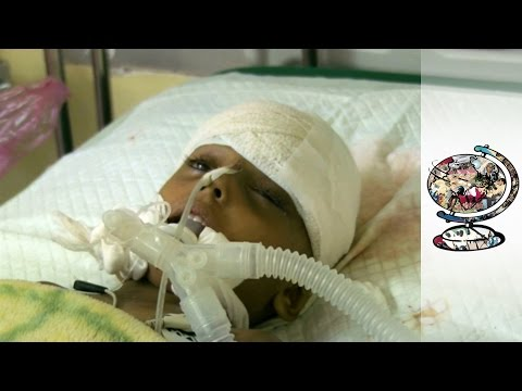 Rare Access To Horrifying Conditions In Besieged City Of Taiz
