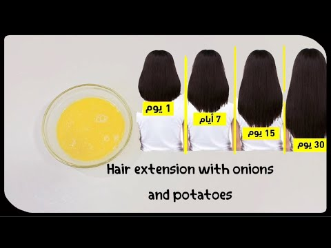 How hair grows and becomes thicker with onions and potatoes !! The challenge of super fast hair grow
