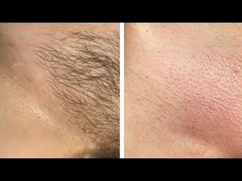 NO SHAVE! NO WAX! REMOVE All PUBIC HAIR WITH NATURALLY & PERMANENTLY