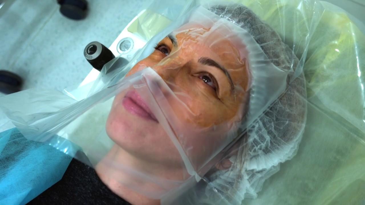 Miopie cât costă operația, Ce este LASIK?