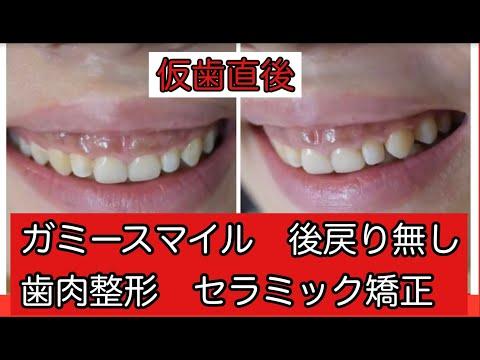 写真を撮る時に歯茎が見えてしまうのが気になりました。