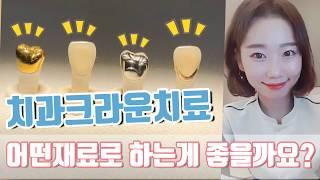 치과 크라운종류별 장단점 - 비용 기능 심미