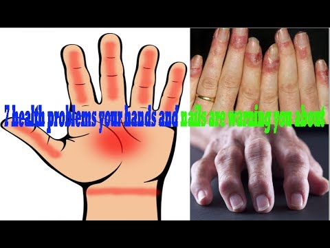 7 health problems your hands and nails are warning you about