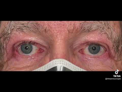Blepharoplasty with Dr. John Burroughs from Springs Aesthetics in Colorado Springs