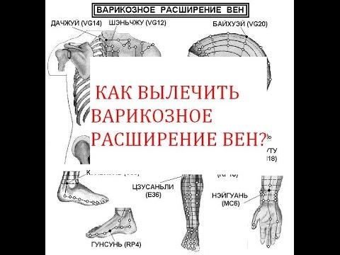 Варикоз красные пятна на ногах, лечение при варикозе