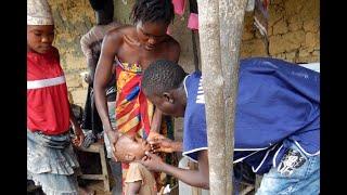 وفاة أكثر من 900 شخص بسبب الحصبة في مدغشقر