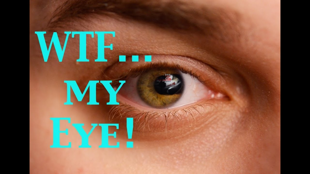 wtf is wrong with my eye!-coloboma-what is it? - youtube, Skeleton
