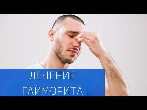 Синусит - причины, симптомы, диагностика и лечение