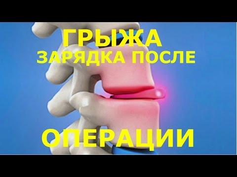 Принципы реабилитации после удаления межпозвоночной грыжи