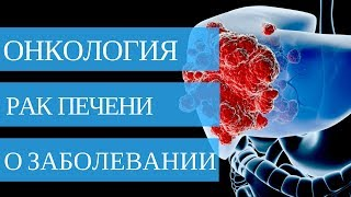 Рак печени ➤ симптомы и лечение рака печени💉🏥