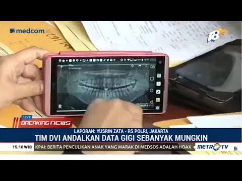 Tim DVI Terima Data Gigi, Rambut dan DNA untuk Identifikasi Korban Lion Air Mp3