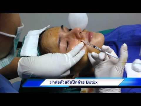 คลิปฉีดหน้าผาก,ฉีดปีกจมูก,และปรับรูปหน้าด้วย Botox มาฝากเพื่อนๆได้ชมกัน