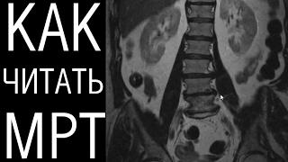 Разбор МРТ поясничного отдела