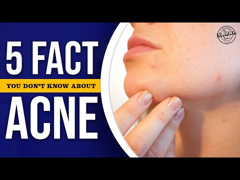 5 Facts You Don't Know About Acne | How to Get Rid of Acne | NDDC Skincare Solutions