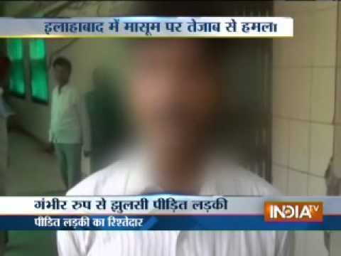 Woman attacked with acid by brother-in-law in Allahabad