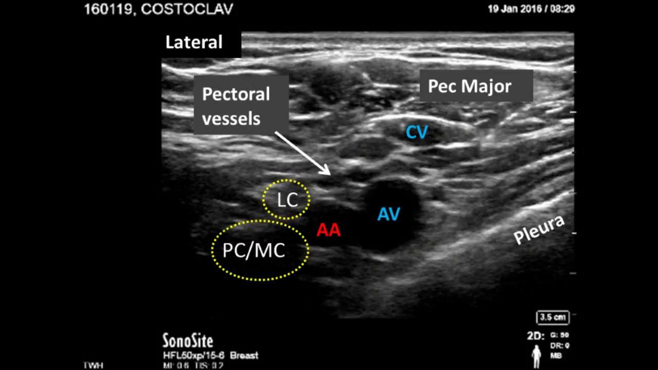 costoclavicular brachial plexus block