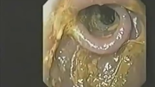 Hogyan kezeljük a diszkót a bél parazitáitól. Széles szalagtojások