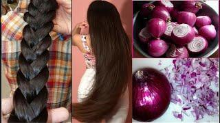 प्याज में बस ये मिला लो बाल इतने लम्बे मोटे हो जायेंगे की सब चौंक जायेंगे | How to Grow Hair Fast