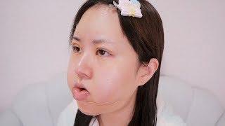 顔が1.5倍に腫れた壮絶なダウンタイム全部見せます。【顎骨切り・埋没抜去】