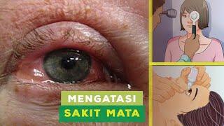 Mata sering berair dan terasa mengganjal? Mari kenalan dengan sindroma mata kering yuk.