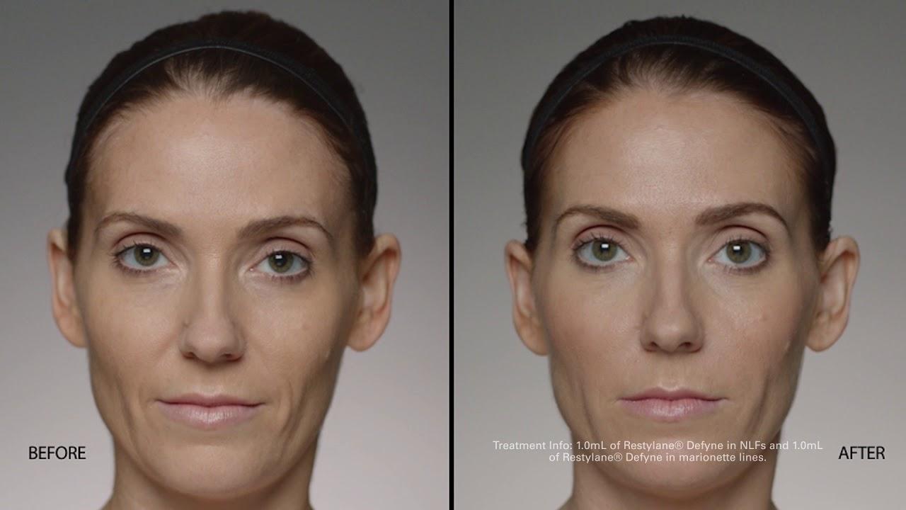Botox, Dysport, Jeuveau