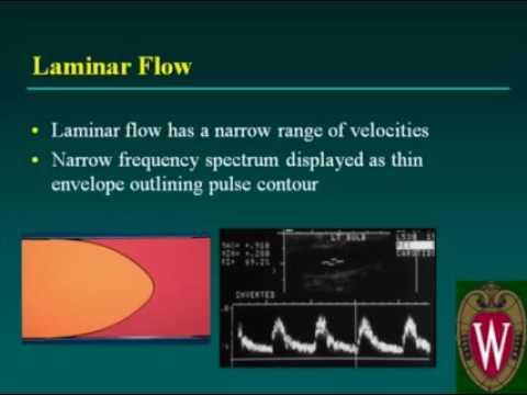 Carotid Sonography Doppler Evaluation and Waveform Analysis