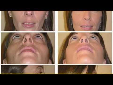 (702) 979-7775 Best Rhinoplasty Doctors Las Vegas NV | Best Nose Job Doctors Nevada