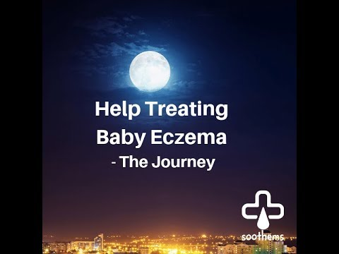 Help Treating Baby Eczema – The Journey