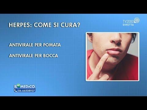 Il Mio Medico - Herpes labiale: come si cura?