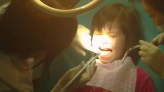 Учитесь, как надо лечить зубы!!!!!!!!!!!!!!!!!!!!!!!!(Дочь чистит зубы 2 раза в день по всем правилам,
